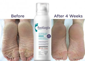 Smooth your heels with Footlogix & Win a $200 Walmart GC