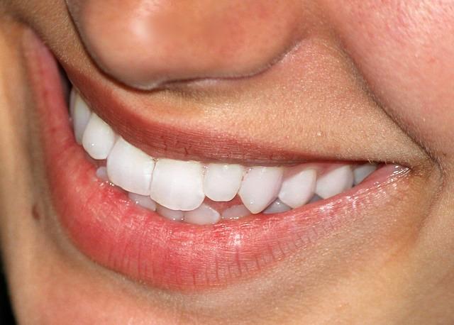 crest-smile